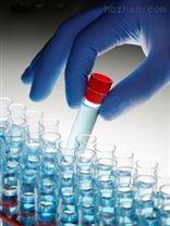 Anti-LIMS2抗體,ILK結合蛋白LIMS2抗體